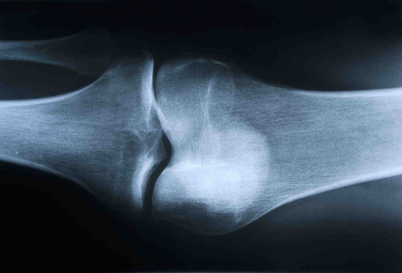 knee_bone